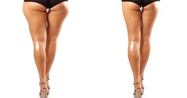 Как убрать ушки на бедрах за неделю: упражнения