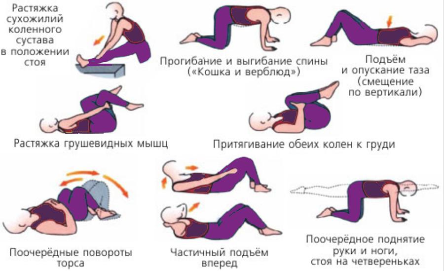 Гимнастика для лечения геморроя (картинки)